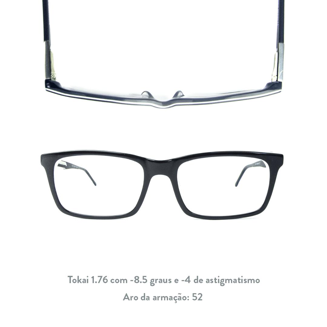 -8.5 de miopia e -4 de astigmatismo