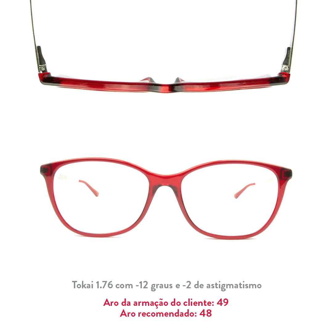 -12 de miopia e -2 de astigmatismo