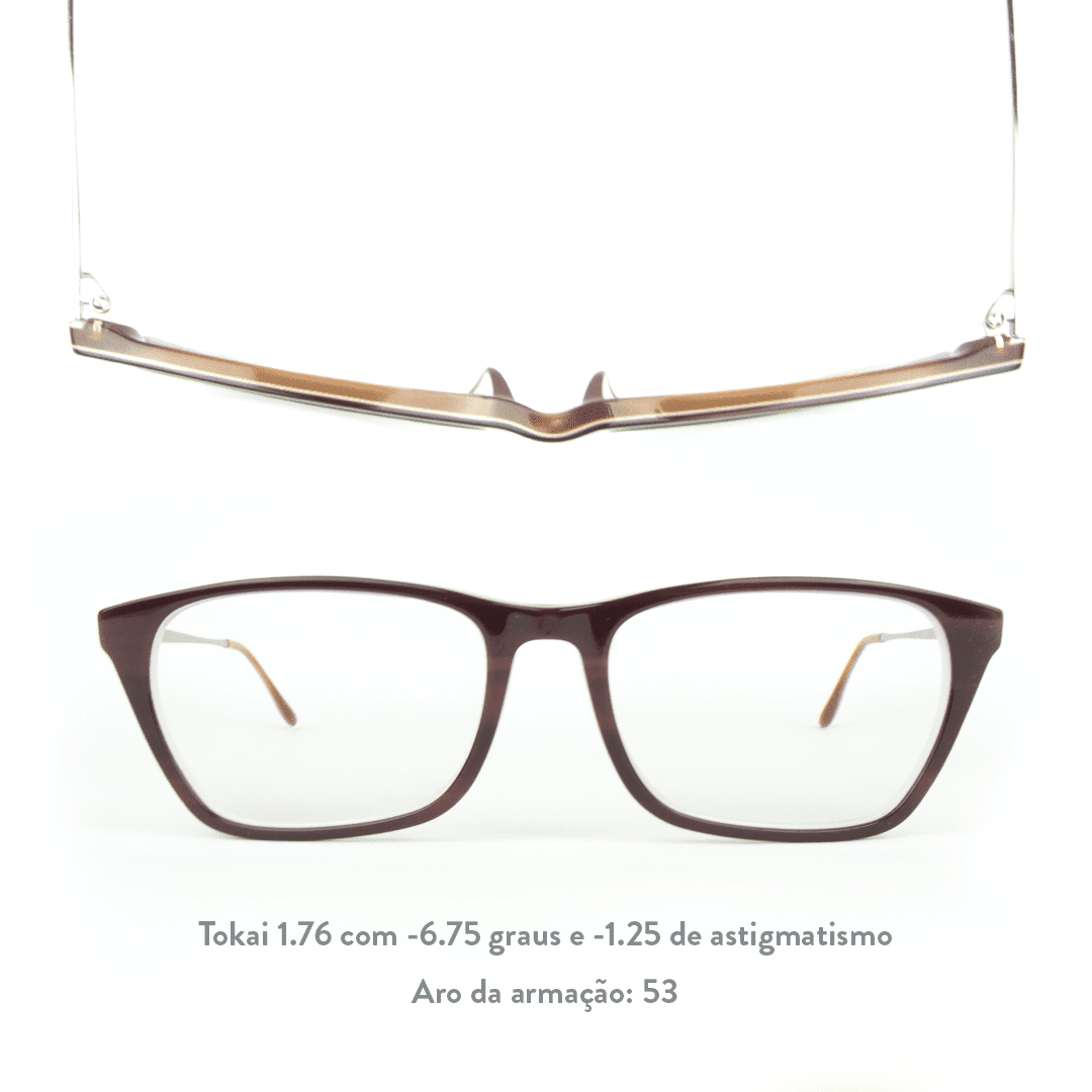 -6.75 de miopia e -1.25 de astigmatismo