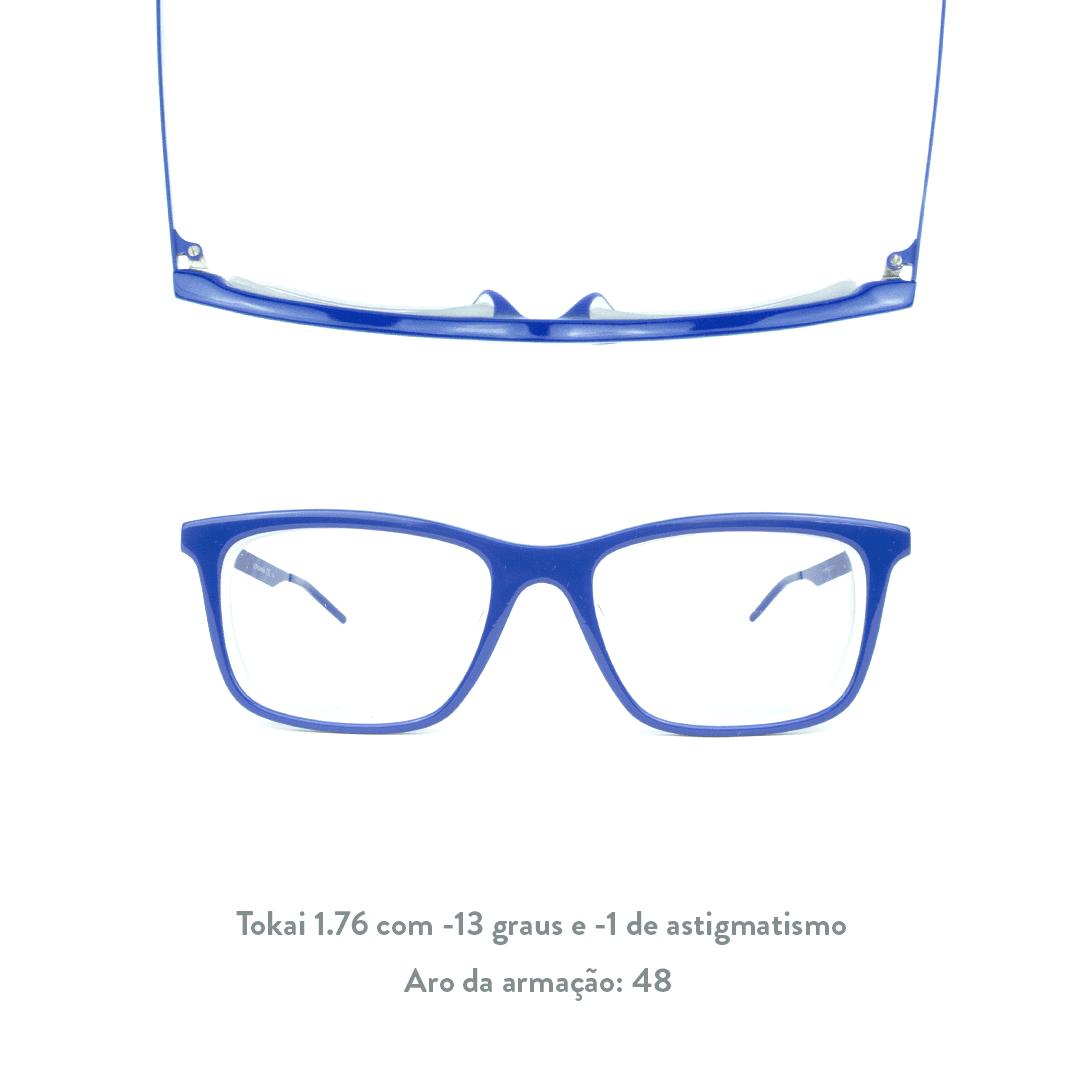 -13 de miopia e -1 de astigmatismo
