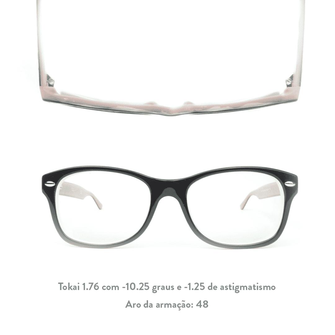 -10.25 de miopia e -1.25 de astigmatismo