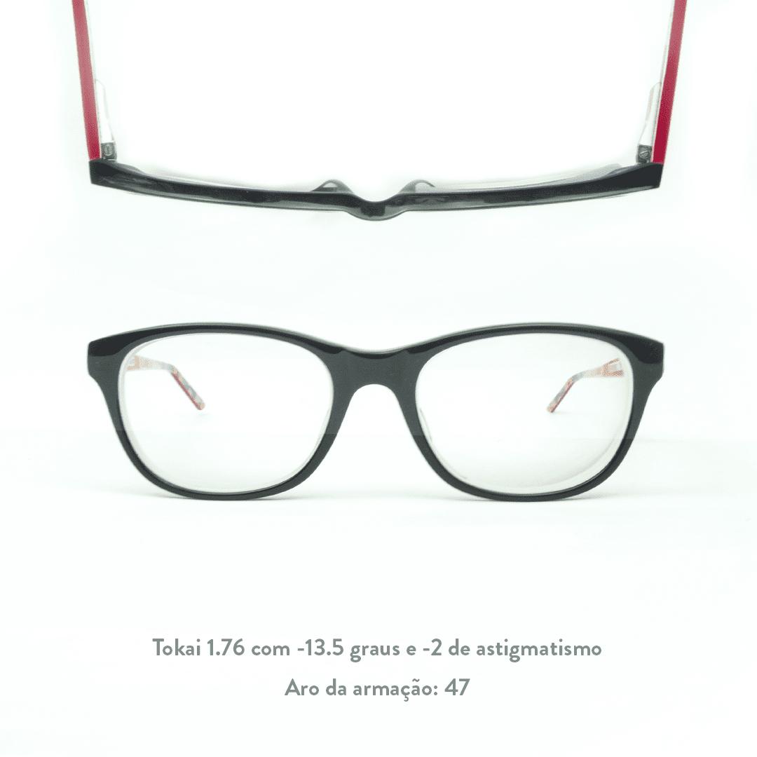 -13.5 de miopia e -2 de astigmatismo