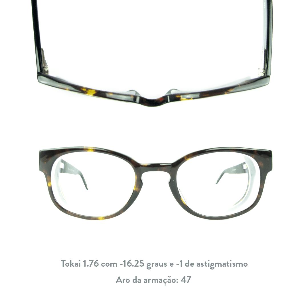 -16.25 de miopia e -1 de astigmatismo