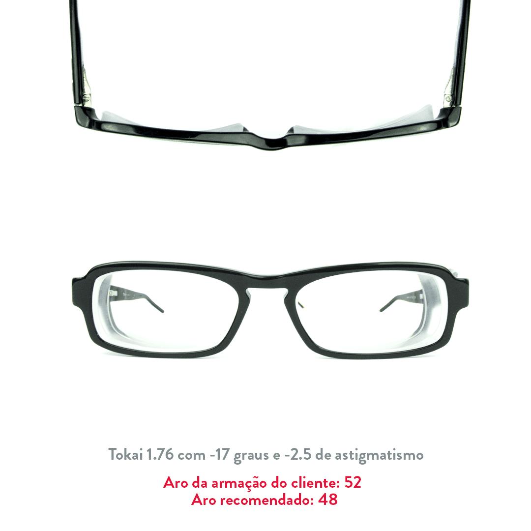 -17 de miopia e -2.5 de astigmatismo