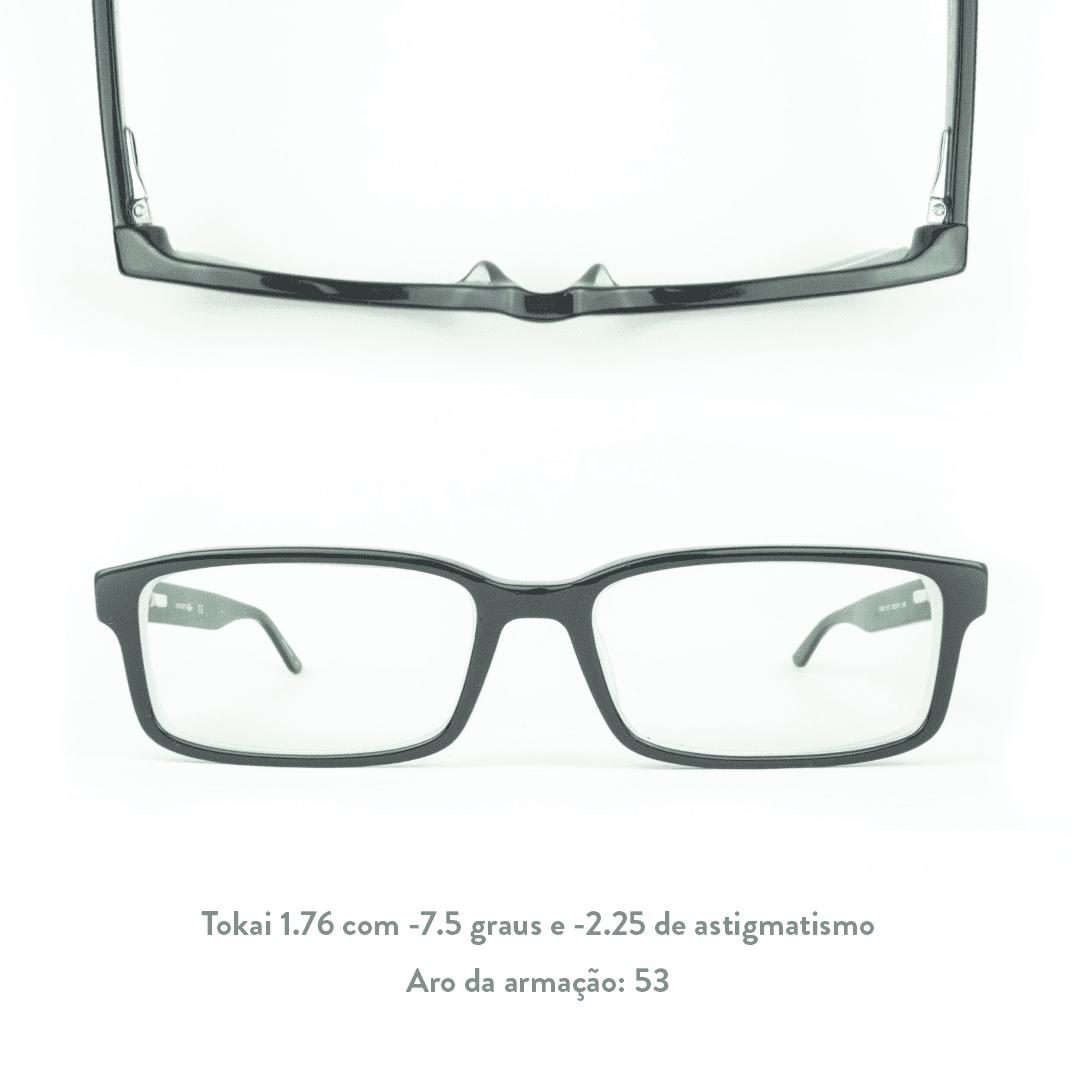 -7.5 de miopia e -2.25 de astigmatismo