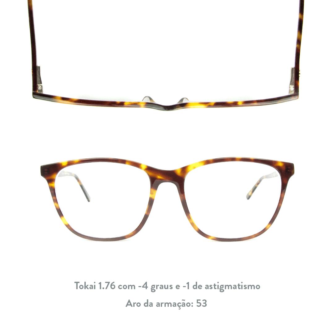 -4 de miopia e -1 de astigmatismo
