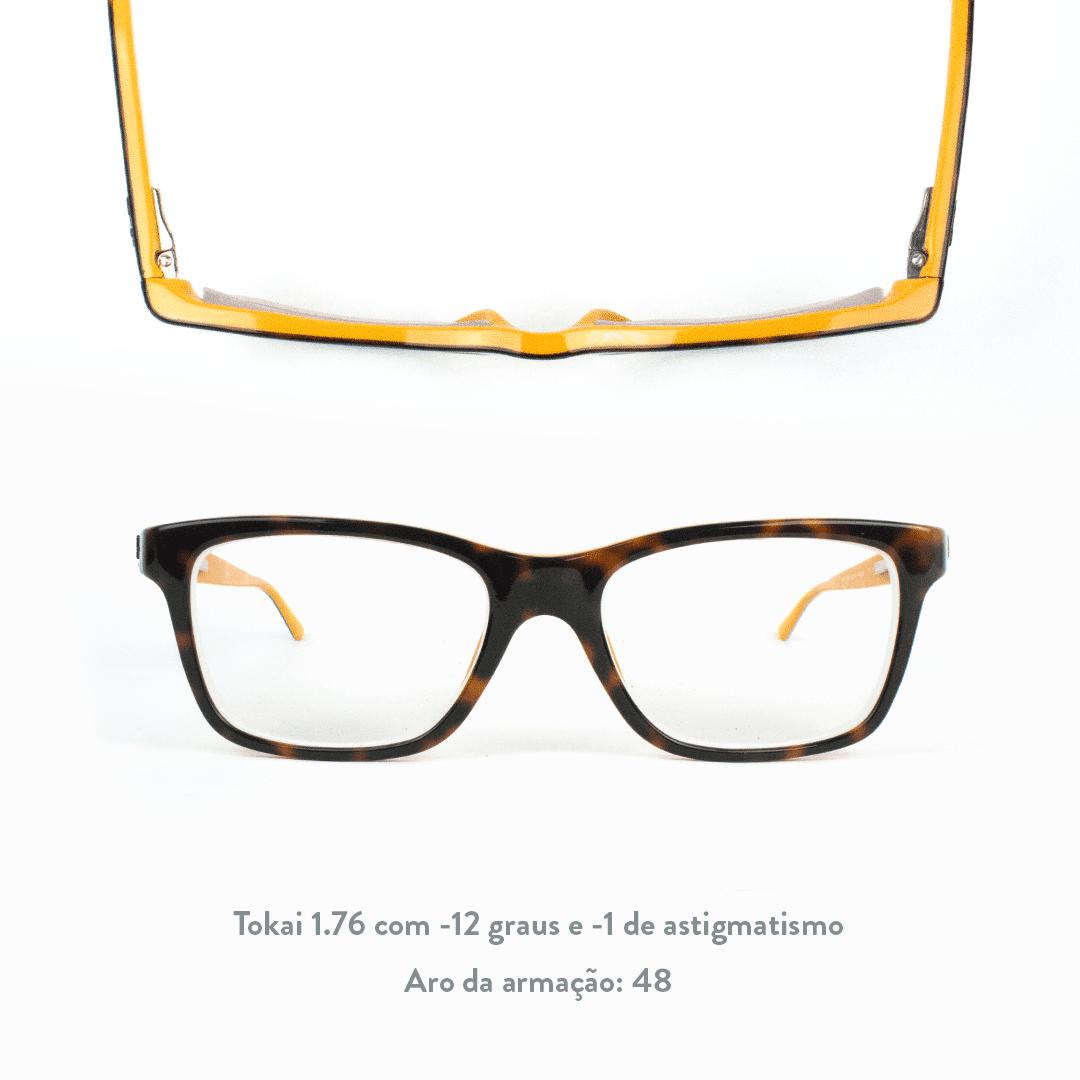 -12 de miopia e -1 de astigmatismo