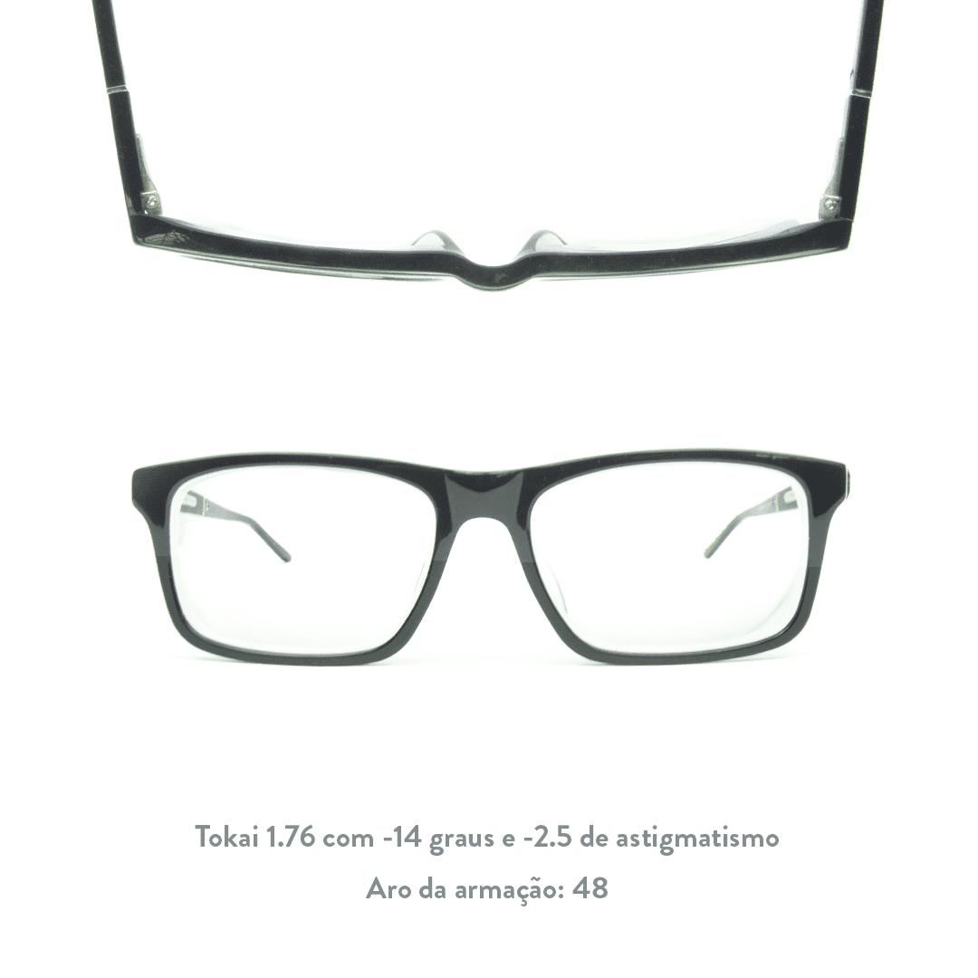 -14 de miopia e -2.5 de astigmatismo