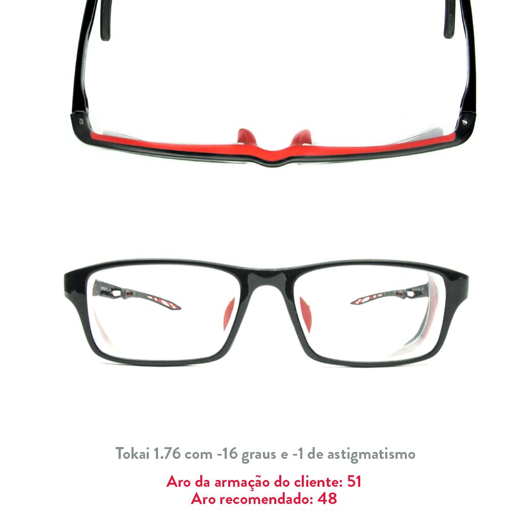 -16 de miopia e -1 de astigmatismo
