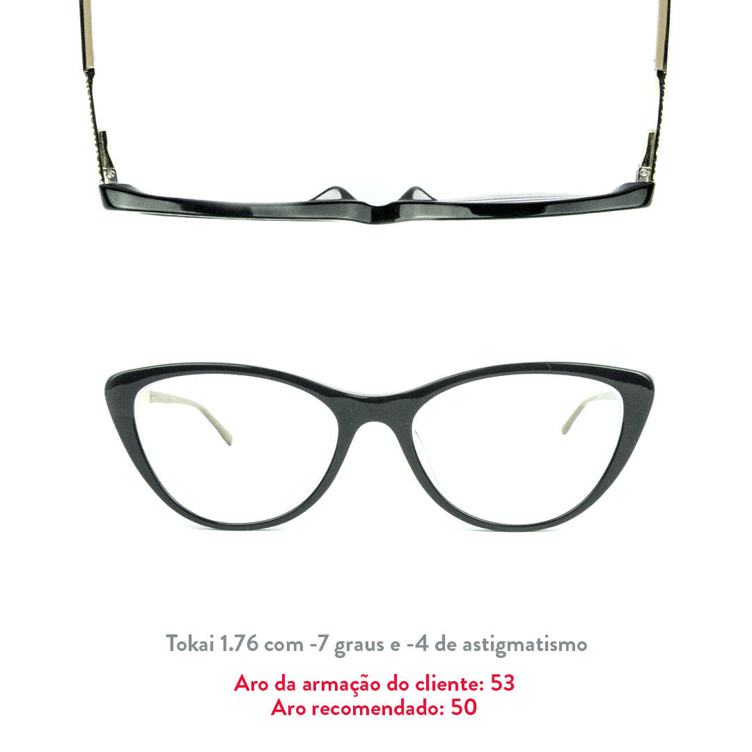 -7 de miopia e -4 de astigmatismo
