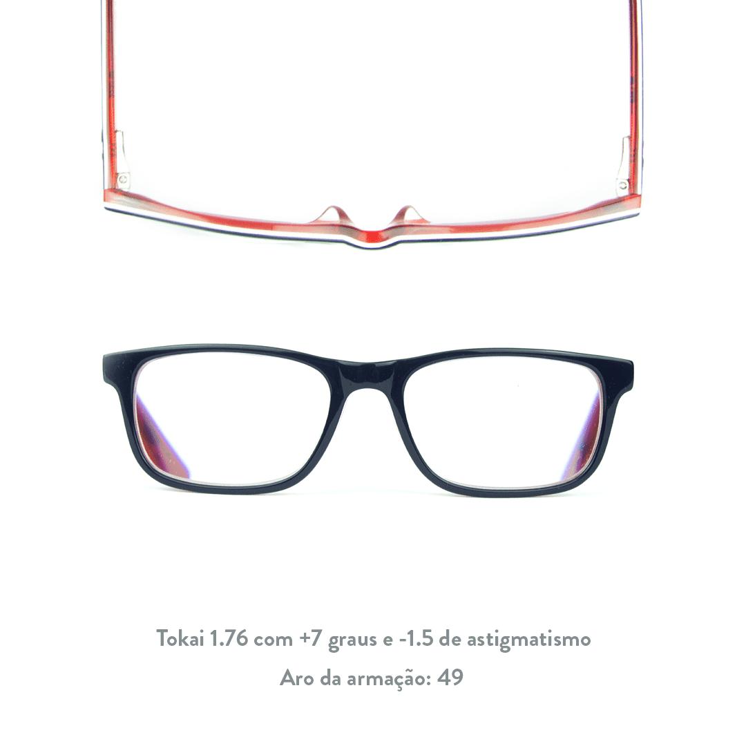 +7 de hipermetropia e -1.5 de astigmatismo