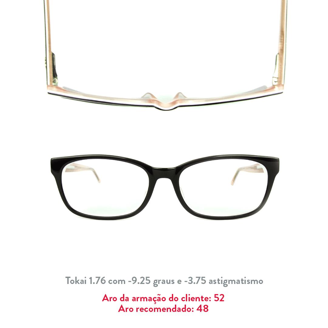 -9.25 de miopia e -3.75 de astigmatismo