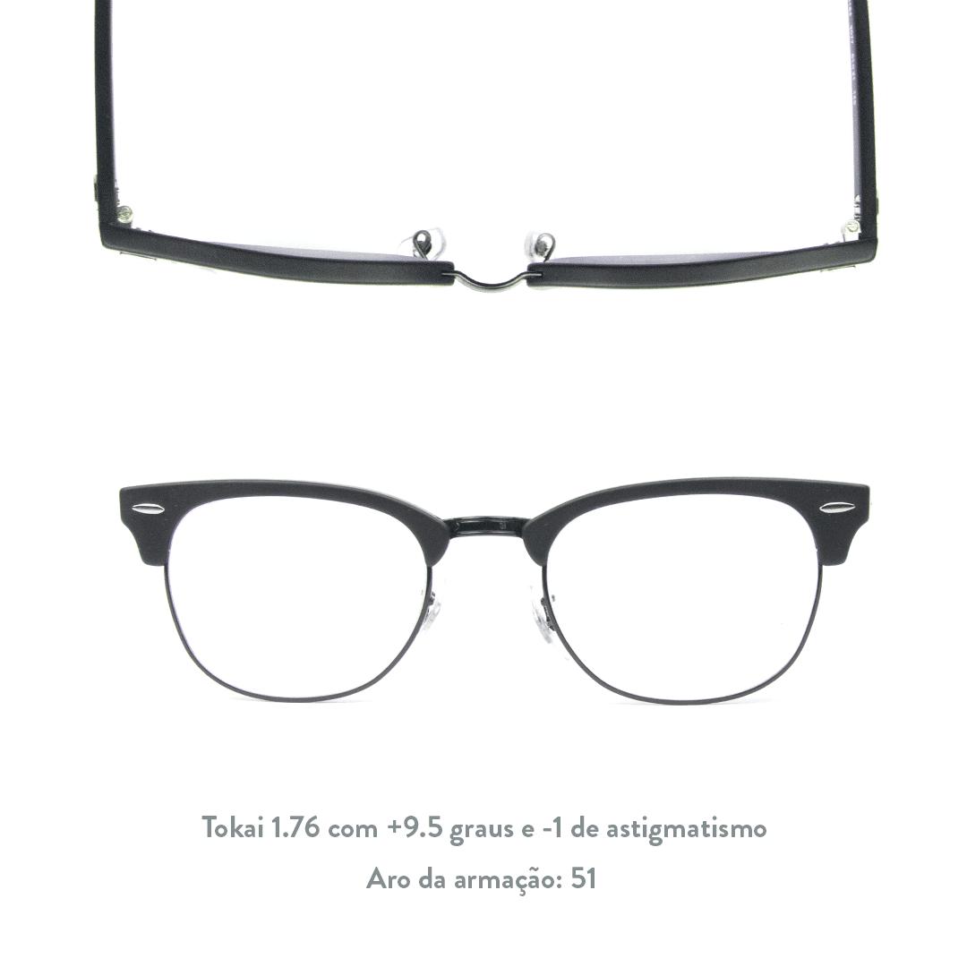 +9.5 de hipermetropia e -1 de astigmatismo