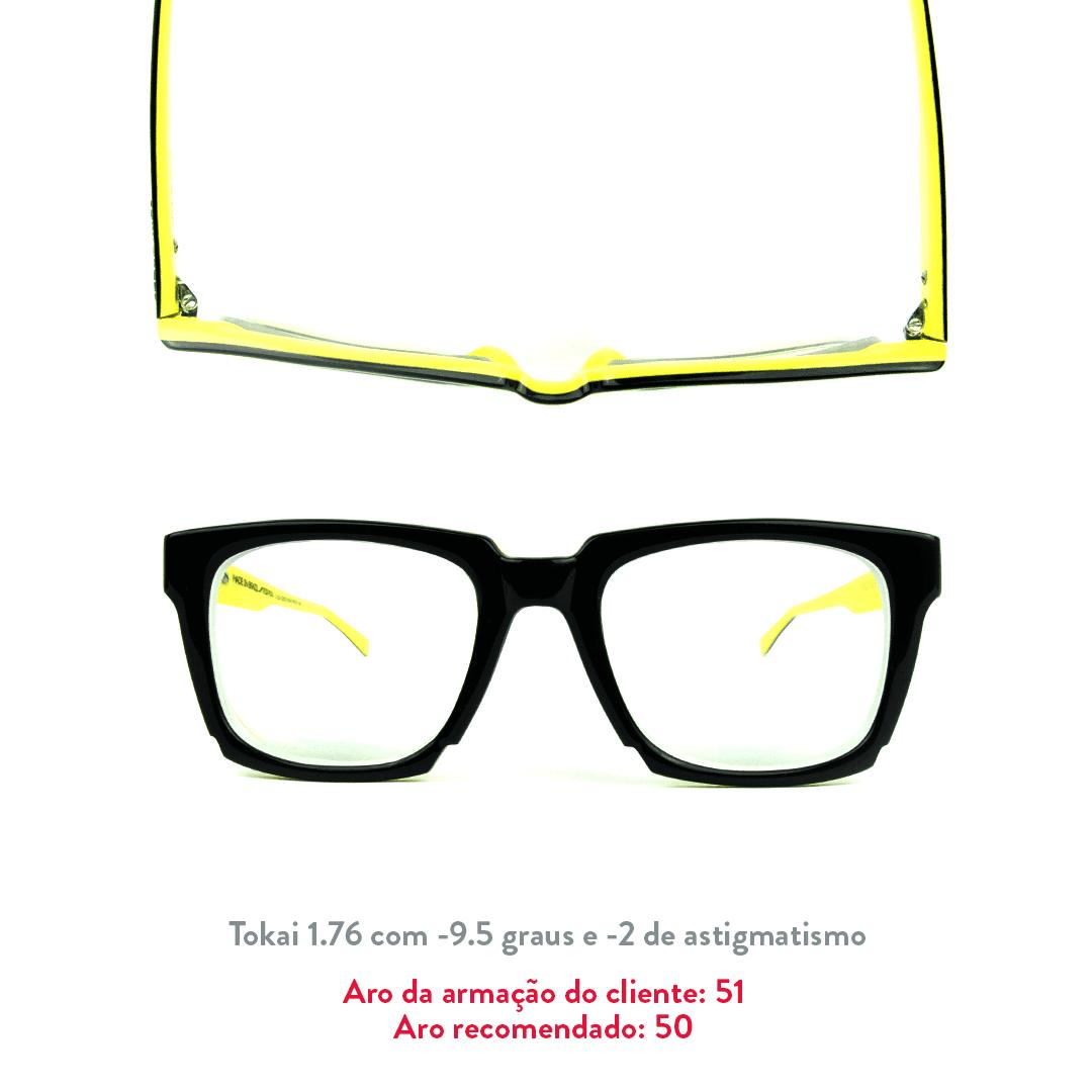 -9.5 de miopia e -2 de astigmatismo