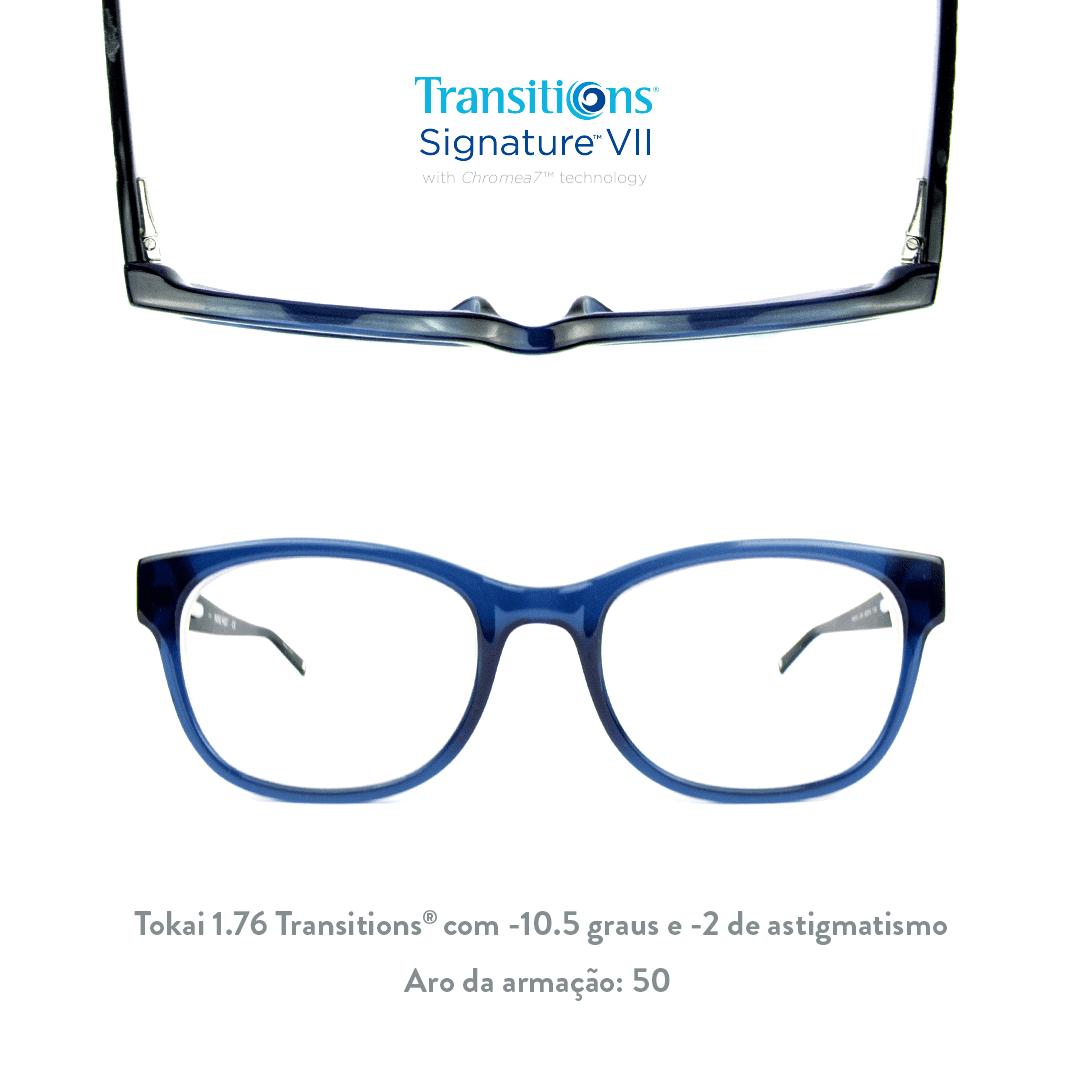 -10.5 de miopia e -2 de astigmatismo