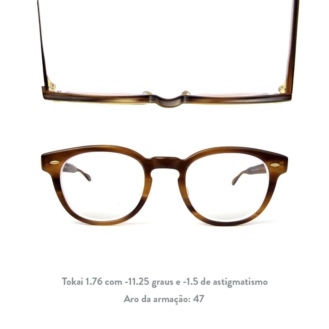 -11.25 de miopia e -1.5 de astigmatismo