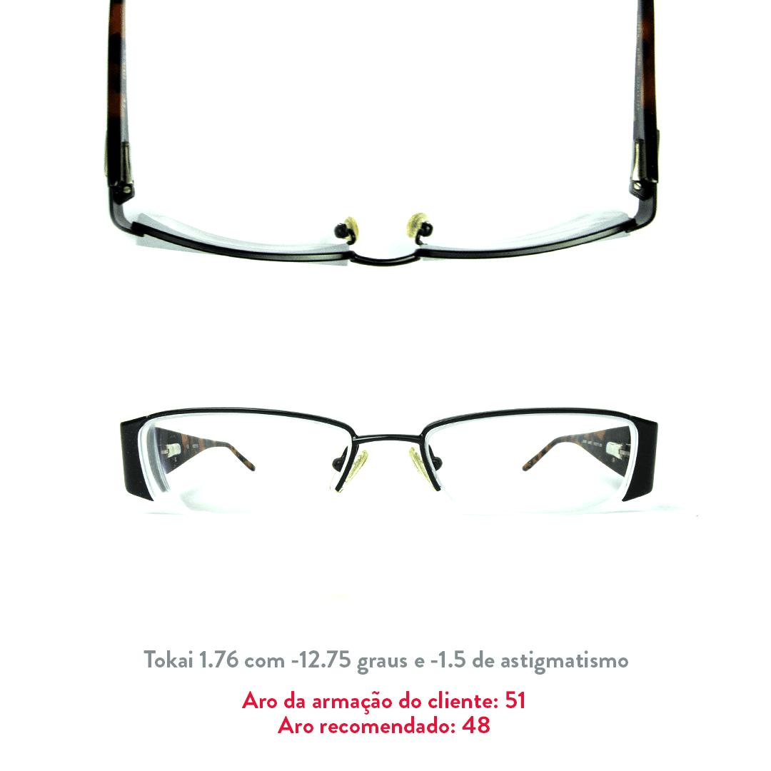 -12.75 de miopia e 1.5 de astigmatismo