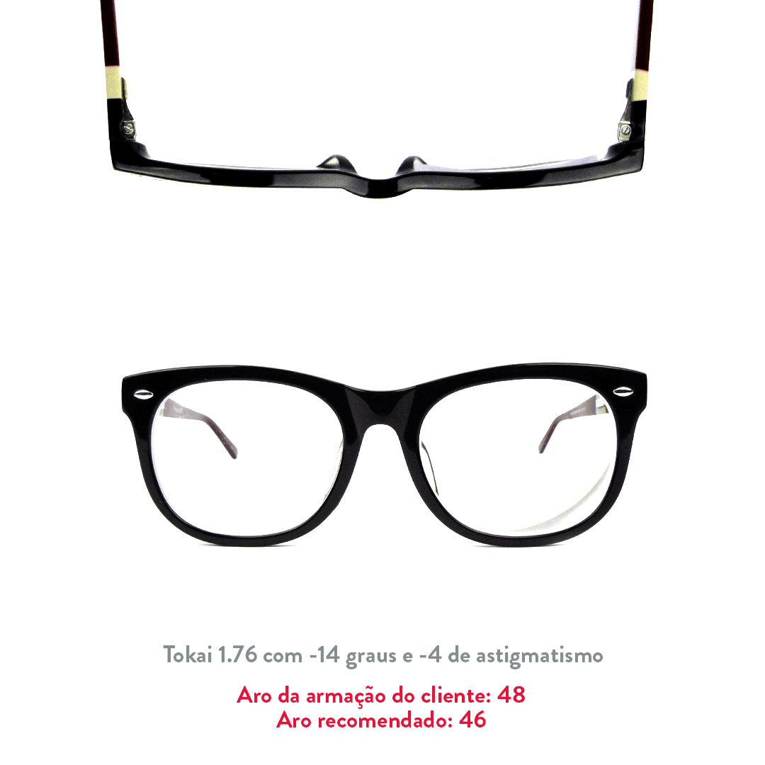 -14 de miopia e -4 de astigmatismo