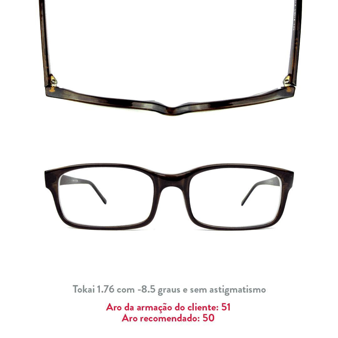 -8.5 de miopia e sem astigmatismo