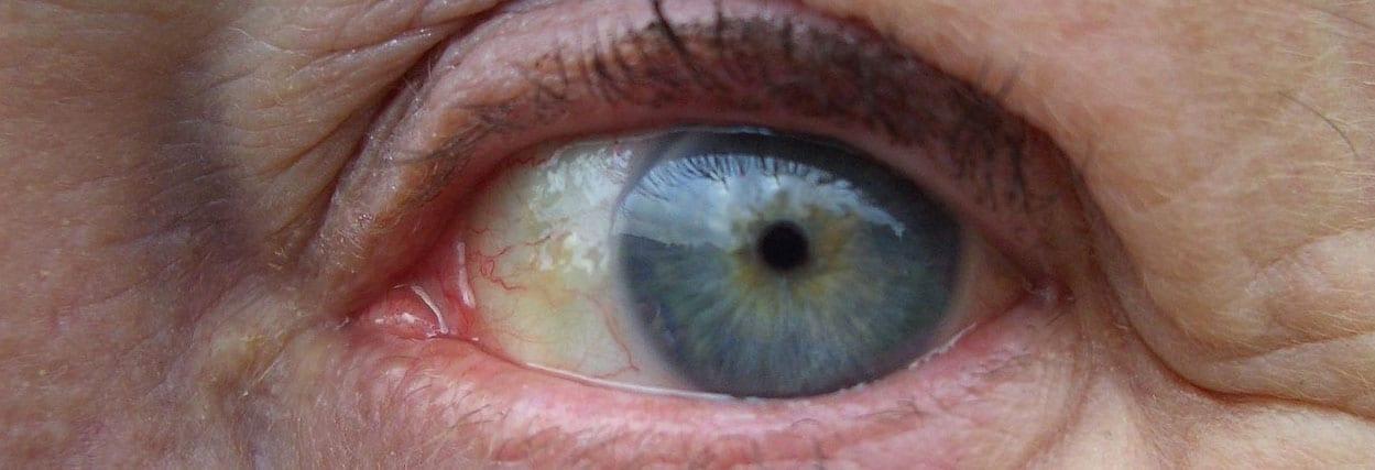 Pterígio ou carnes nos olhos: saiba mais sobre essa doença