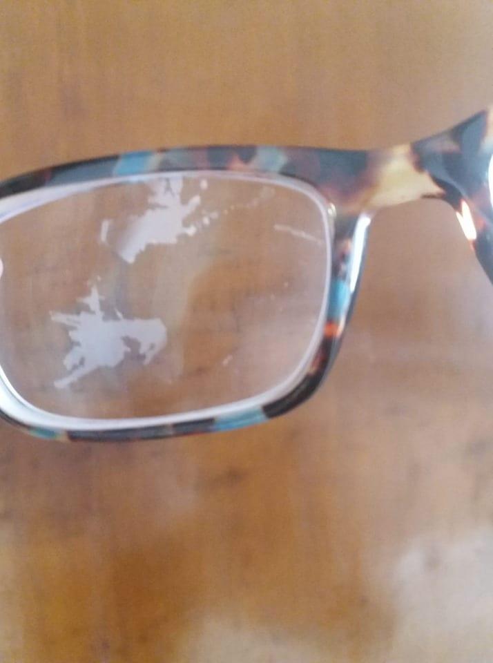 óculos descascando