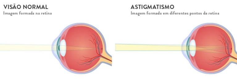 miopia e astigmatismo juntos