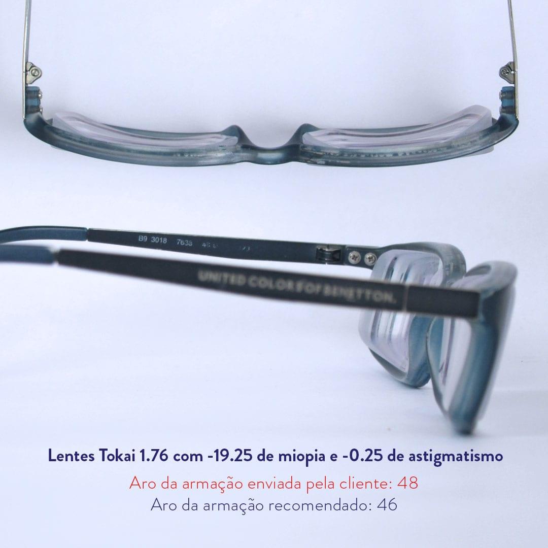 17 graus de miopia
