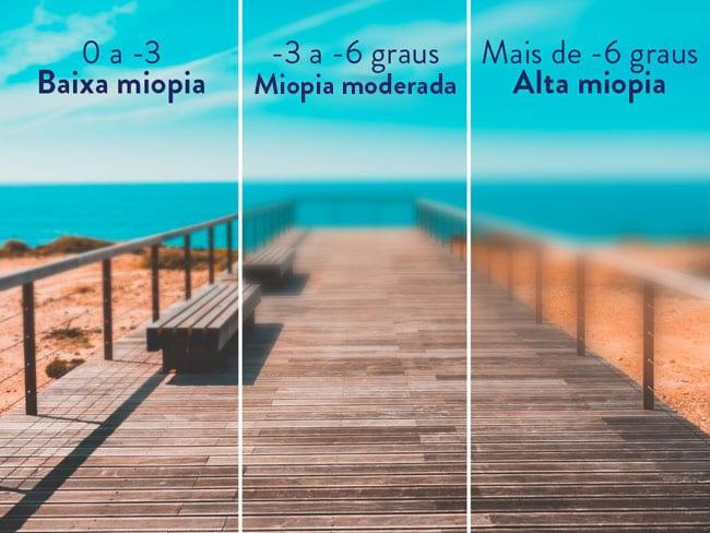 miopia la copii tratament naturist formula acuității vizuale