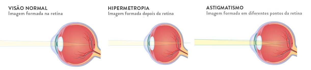 hipermetropia e astigmatismo juntos