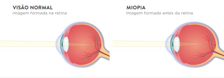 Quem tem miopia precisa usar óculos o tempo todo