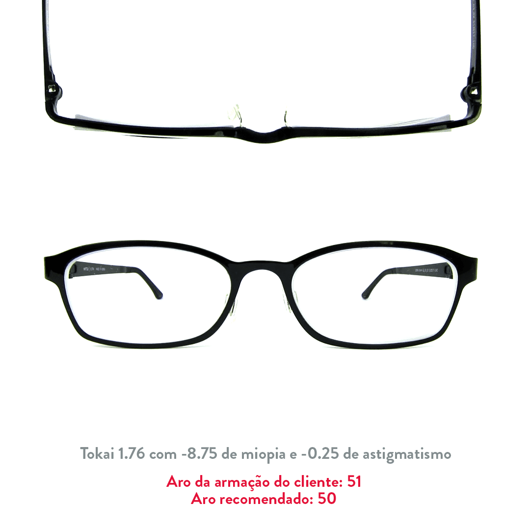 -8.75 de miopia e -0.25 de astigmatismo