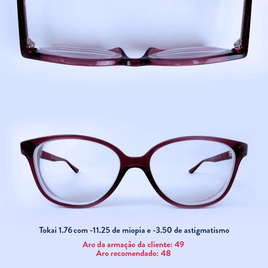 -11.25 de miopia e -3.50 de astigmatismo
