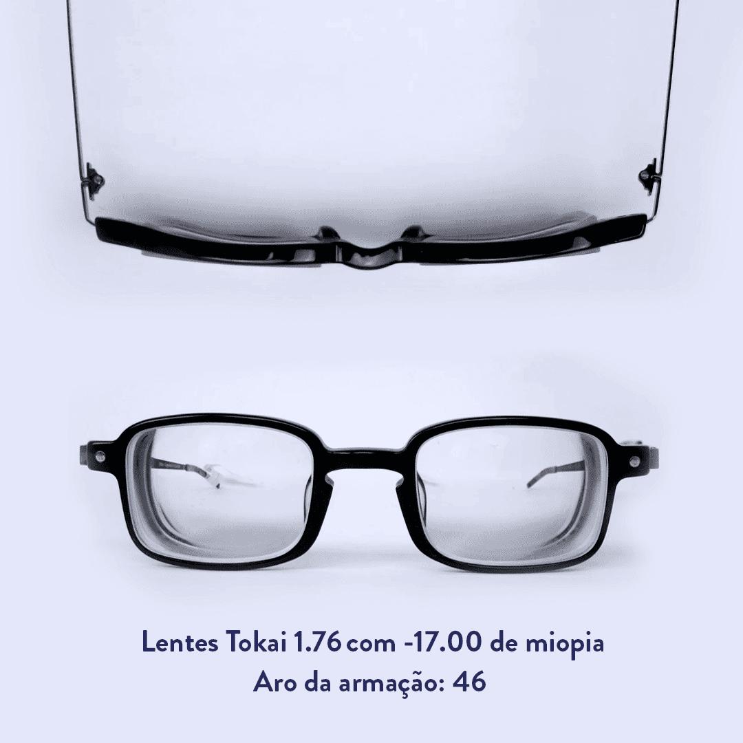 -17.00 de miopia e sem astigmatismo