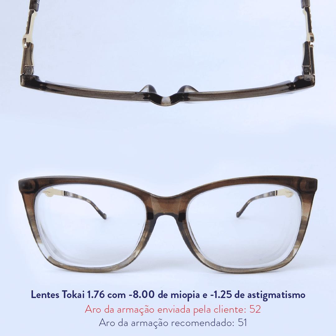 -8.00 de miopia e -1.25 de astigmatismo