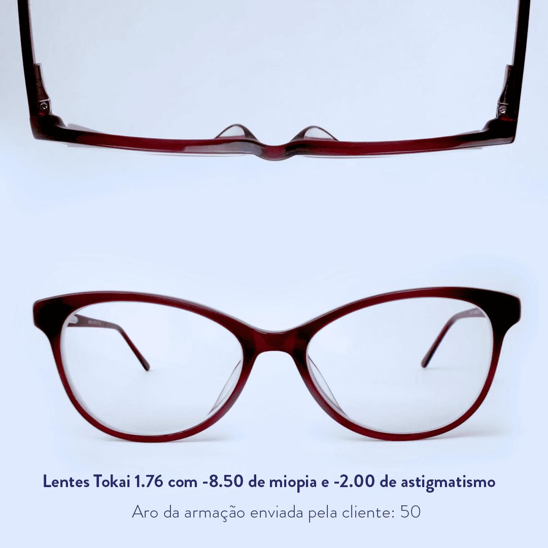 -8.50 de miopia e -2.00 de astigmatismo