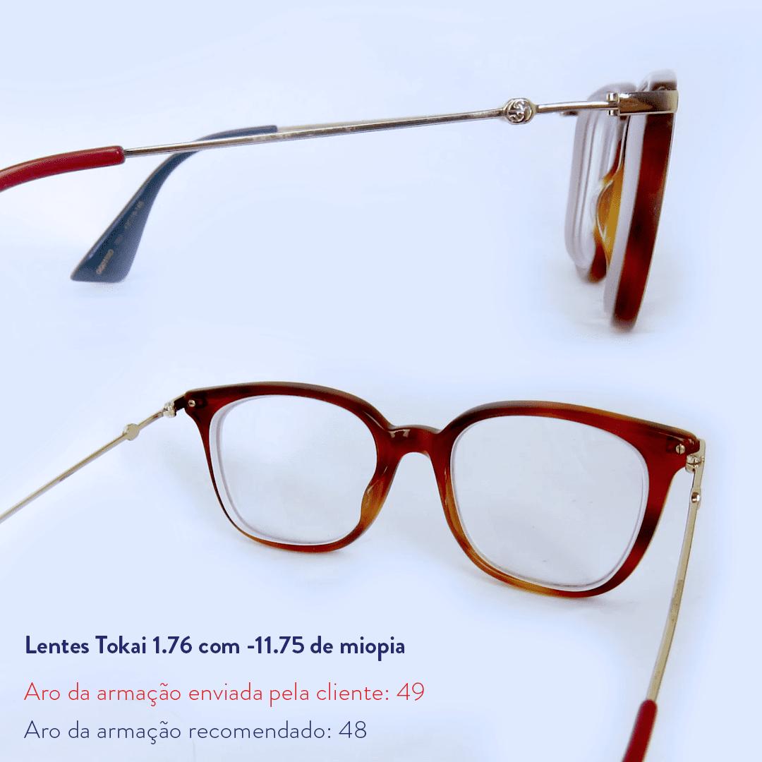 -11.75 de miopia e sem astigmatismo