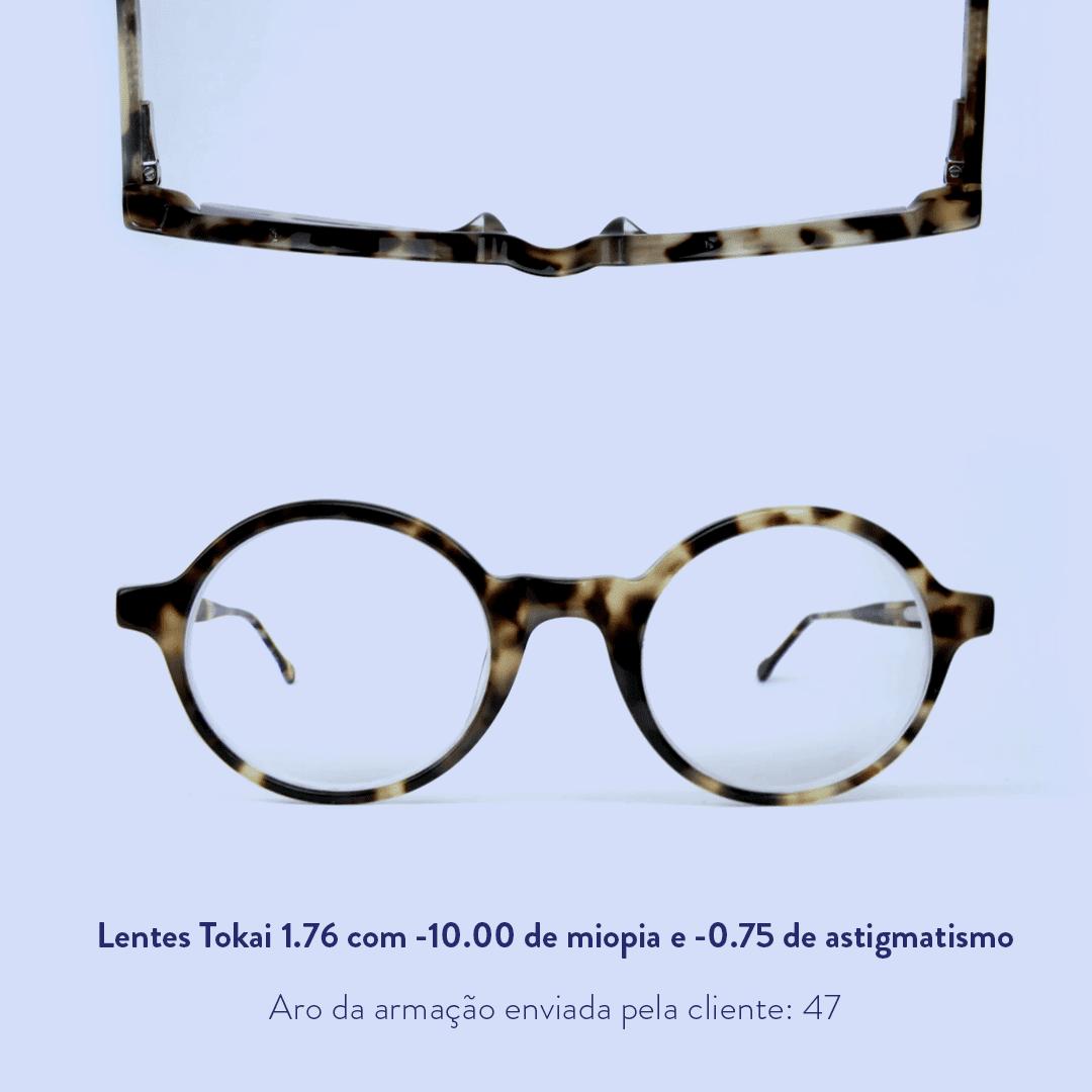 -10.00 de miopia e -0.75 de astigmatismo