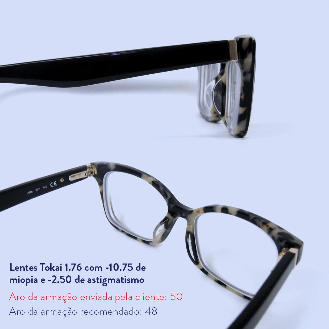 -10.75 de miopia e -2.50 de astigmatismo