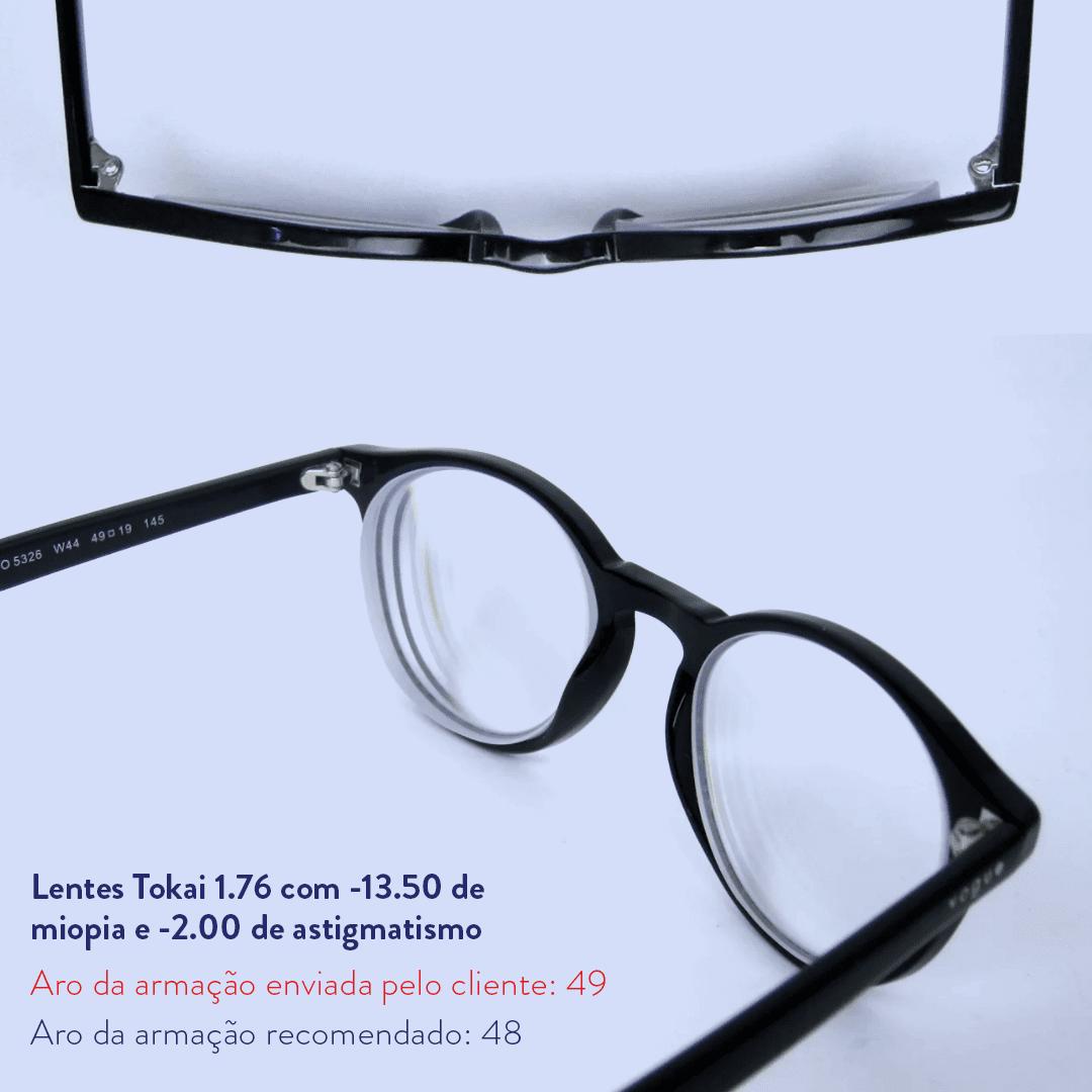 -13.50 de miopia e -2.00 de astigmatismo