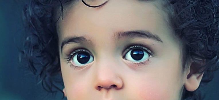 estrabismo infantil