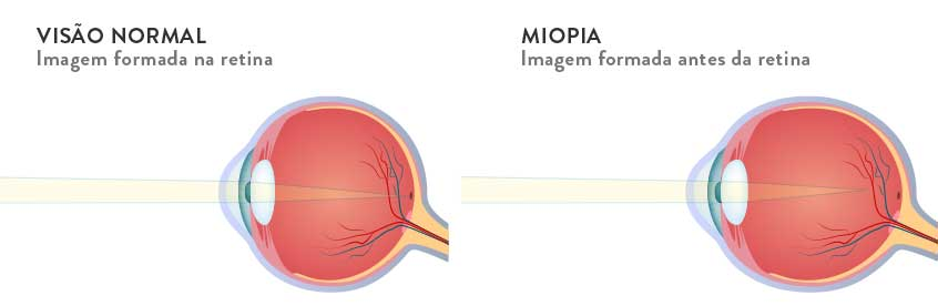 falsa miopia causas