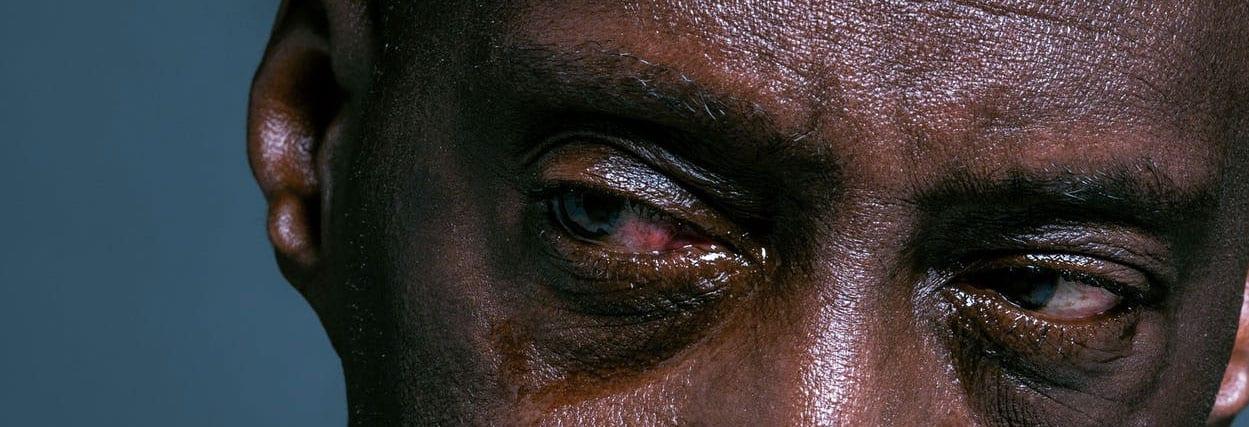 Olhos vermelhos: como tratar, causas e quando ir ao médico