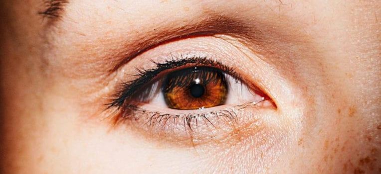 nervo óptico