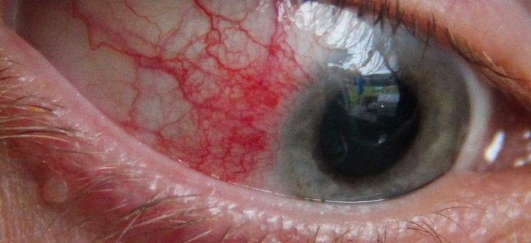 inflamação nos olhos