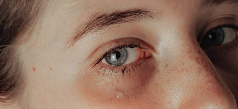 olhos lacrimejando