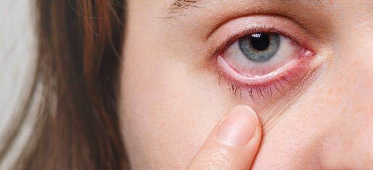 partes do olho