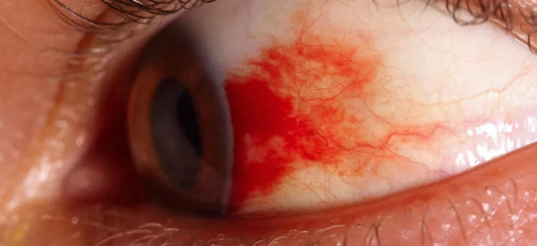 olhos sangrando