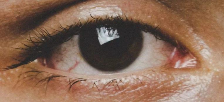 bactéria no olho