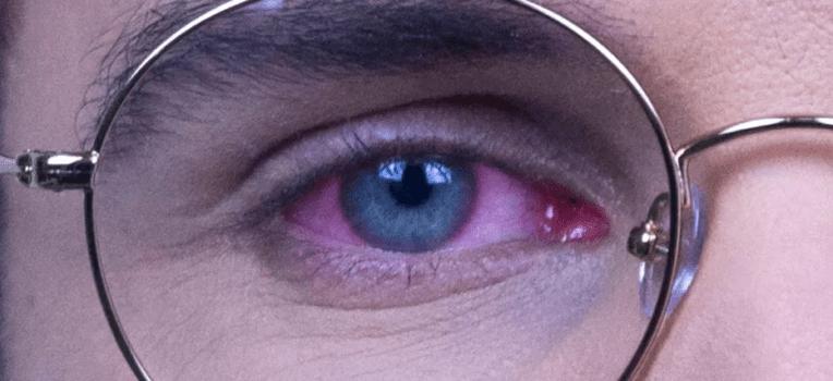 olhos inflamados