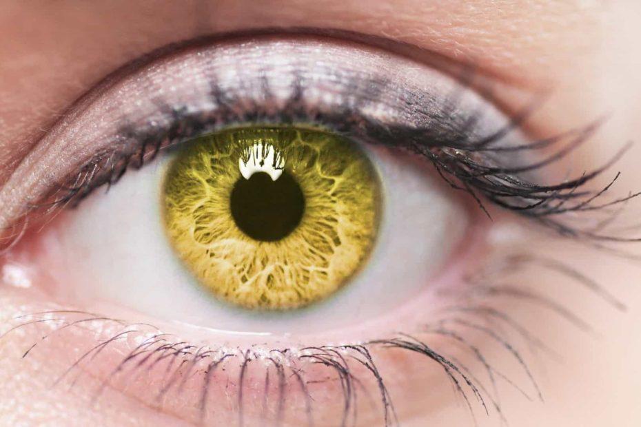 olhos amarelos o que pode ser